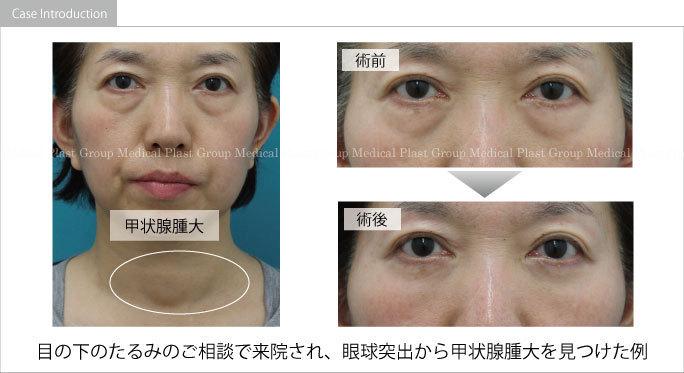 眼球突出を伴う目の下の膨らみから甲状腺腫大を発見した症例