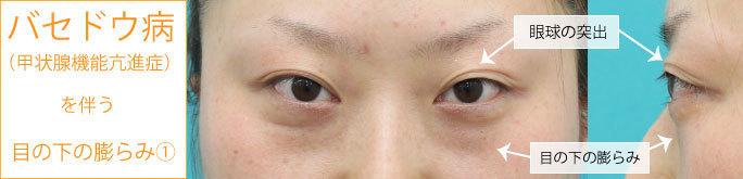 バセドウ 病 症状 バセドウ病|甲状腺の病気について|伊藤病院
